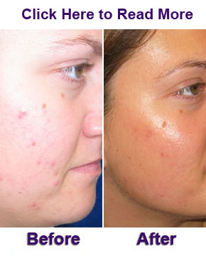 ACNE Results Before and After